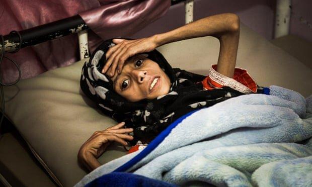 جنگ و قحطی میتواند نسل بعدی یمنیها را نابود کند