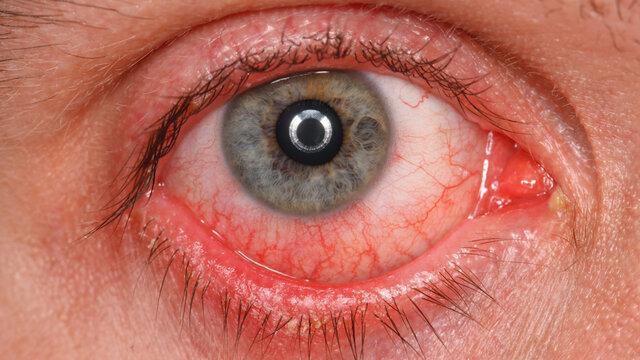 مشاهده شواهدی مبنی بر ابتلای سلولهای چشم به کووید-۱۹